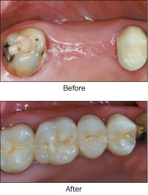 Fixed Partial Dentures Bridges The Tooth Booth