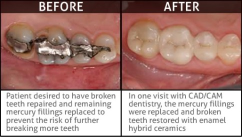 before_after__cerec_example