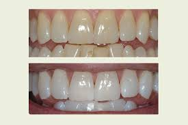 beore and after whitening