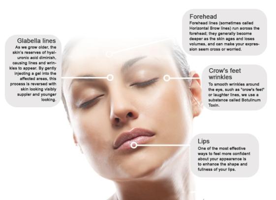 botox-face1