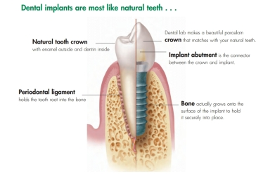 dental implant illistration