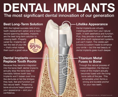 dental-implants-101