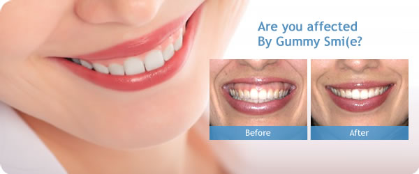 Treatment Of The Gummy Smile The Tooth Booth