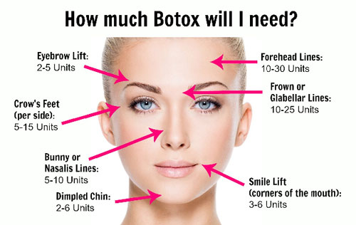 how-much-botox-will-i-needopt