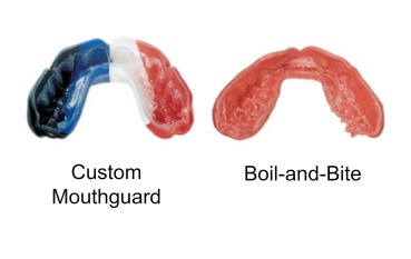 custom-mouth-guard-vs-boil-and-bite