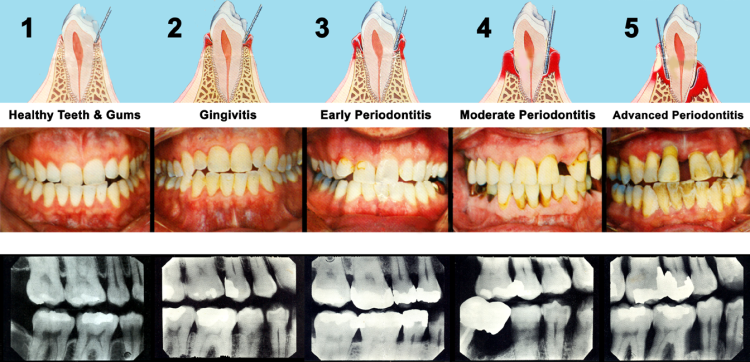 periodontal_images